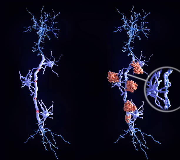 Multiple sclerosis (MS): heatlhy neuron with intact myelin sheath, neuron afffected by MS (right) stock photo