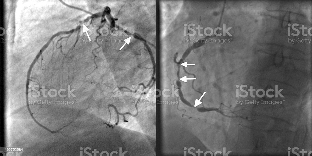 Multivessel Coronary Disease on Angiography stock photo
