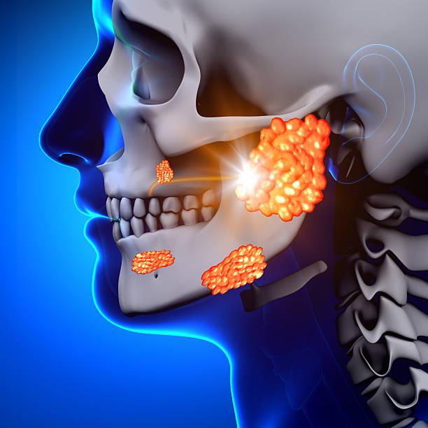 Mumps / Parotid Gland - Sickness Mumps / Parotid Gland - Sickness human gland stock pictures, royalty-free photos & images