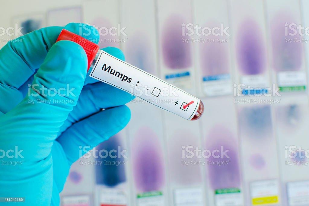 Mumps positive stock photo