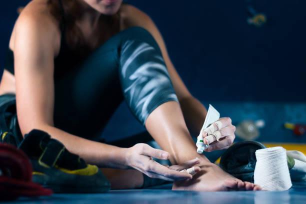 muskel frauen frau behandelt wunden nach klettern bouldern in trainingshalle - schmerzmittel stock-fotos und bilder
