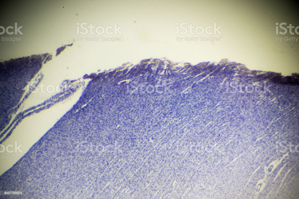 musculus cardiacus cells section under microscopy stock photo