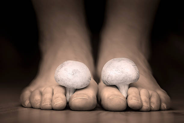 Mushrooms between the toes feet imitating toes fungus stock photo