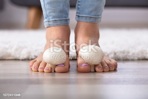 Close-up Of A Woman's Feet With Edible Mushrooms Between The Toes