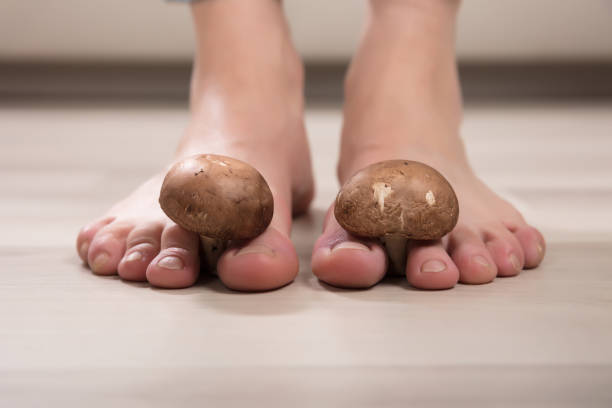 mushrooms between woman's toes - fungus stock pictures, royalty-free photos & images