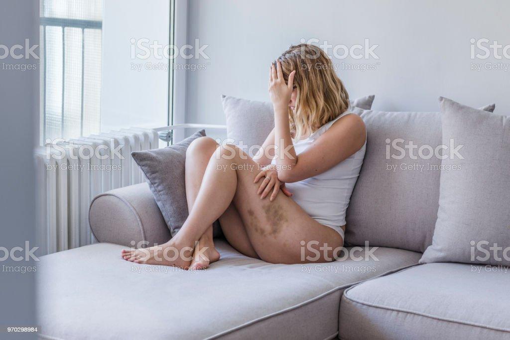 Verstummelte Frauen Bedecken Ihr Gequetscht Gesicht Vor Scham Stockfoto Und Mehr Bilder Von Achtlos Istock