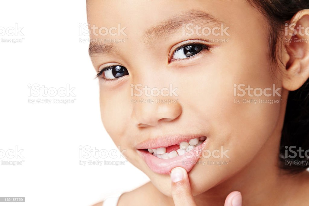 My Missing Teeth royalty-free stock photo