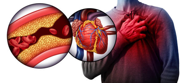 Myocardial Infarction Myocardial infarction as a person suffering from a heart attack due to clogged coronary artery as a cardiology distress symbol with 3D illustration elements. cholesterol stock pictures, royalty-free photos & images