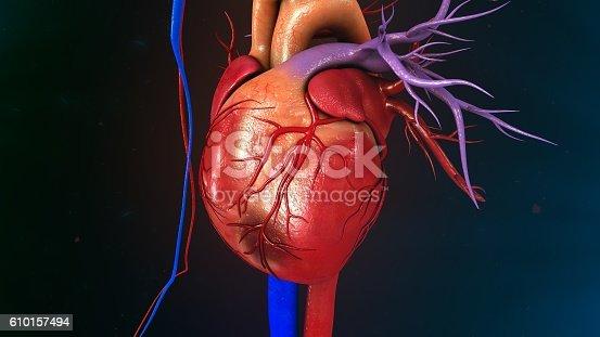 istock Myocardial Infarction 610157494