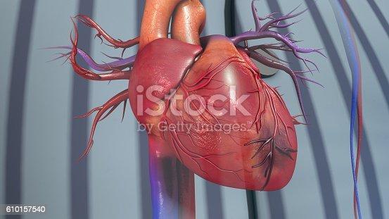 istock Myocardial Infarction 610157540