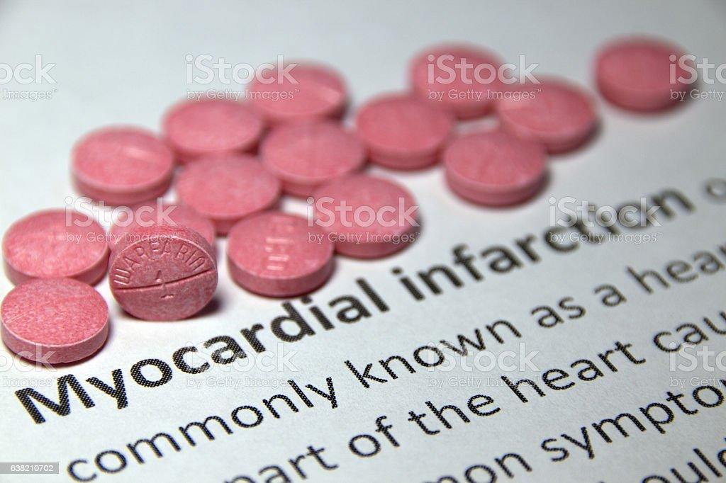 Myocardial Infarction Treatment stock photo