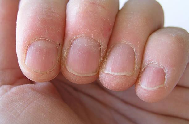Nail biter stock photo
