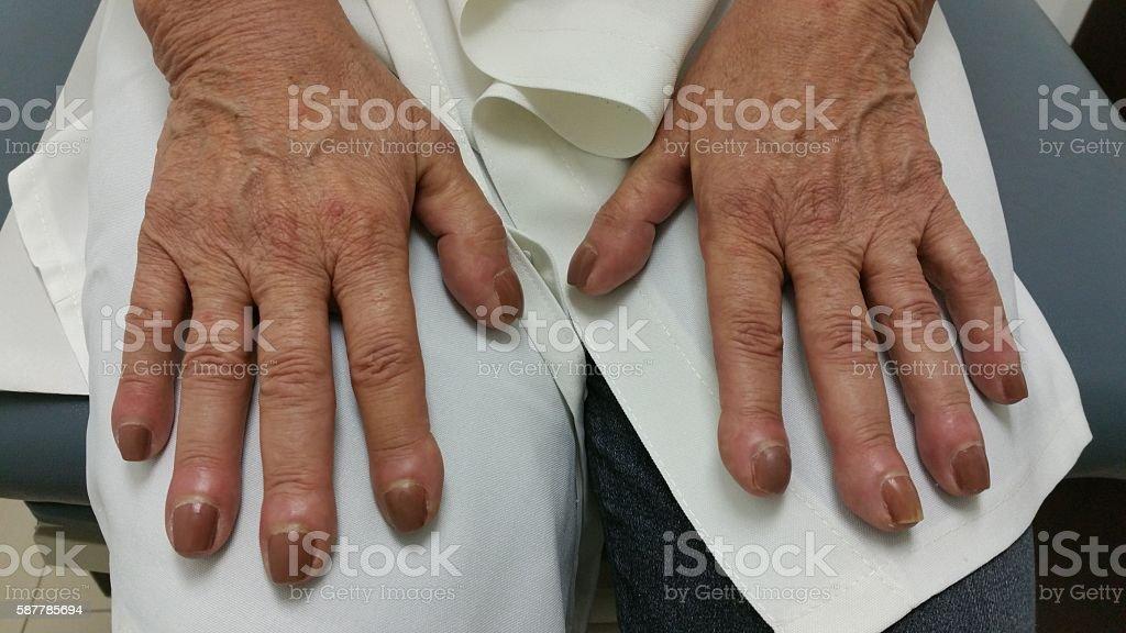 Nail Clubbing from Lung Cancer Disease stock photo