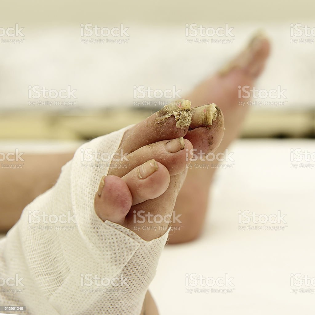 Nail disease, onychomycosis, nail fungus. stock photo