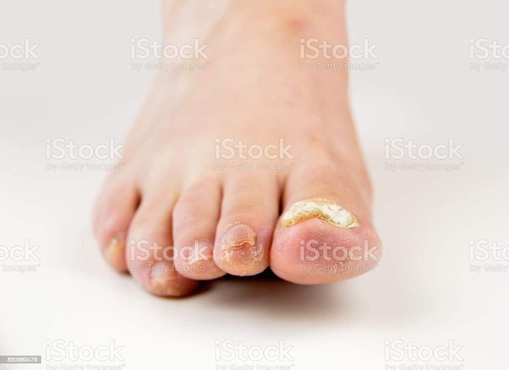 nail fungus in white stock photo