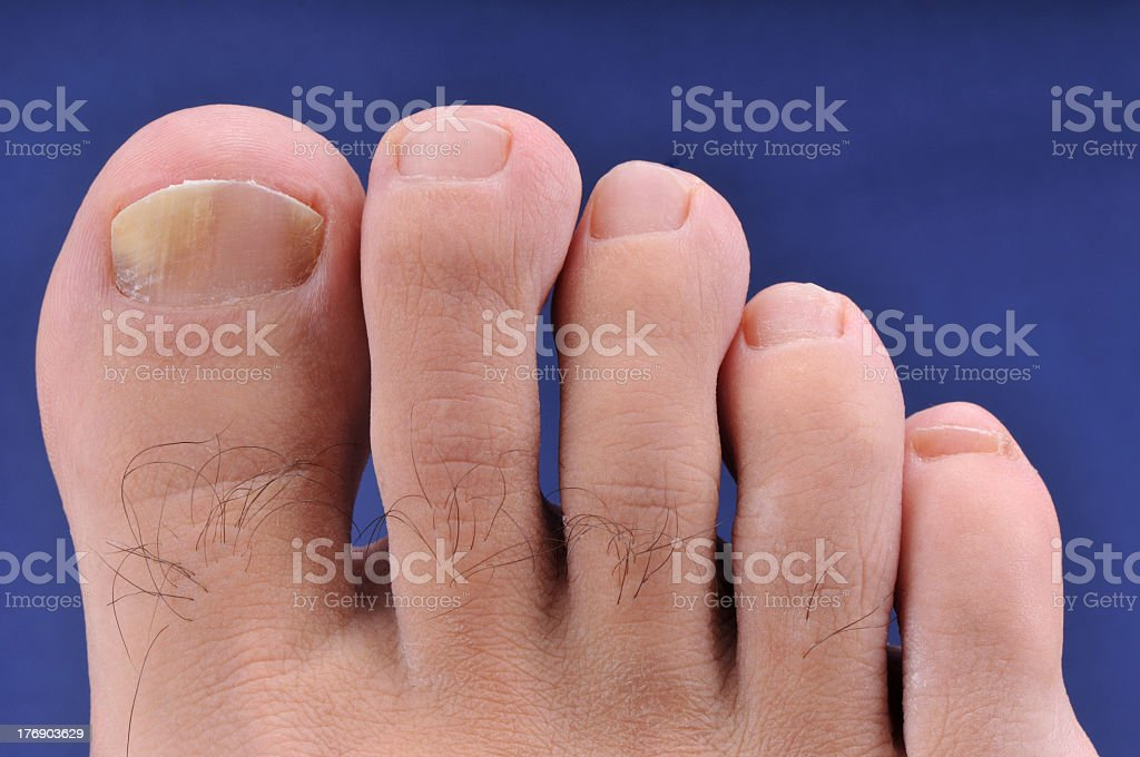 Nail fungus on one toe of an adult foot stock photo