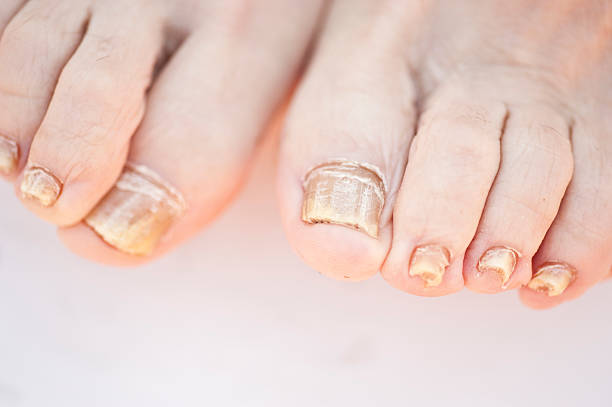 Nail Fungus stock photo