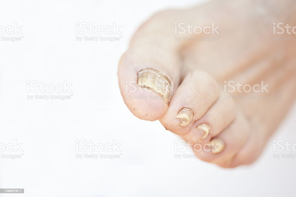 Nail Fungus Stock Photo & More Pictures of Anatomy | iStock