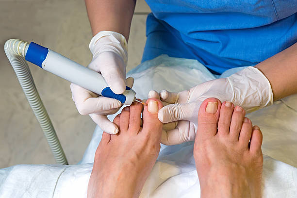 Nail operation in hospital stock photo