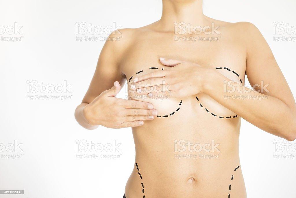 Fotografía de Torso Desnudo De Una Mujer Marcado Para La Cirugía y ...