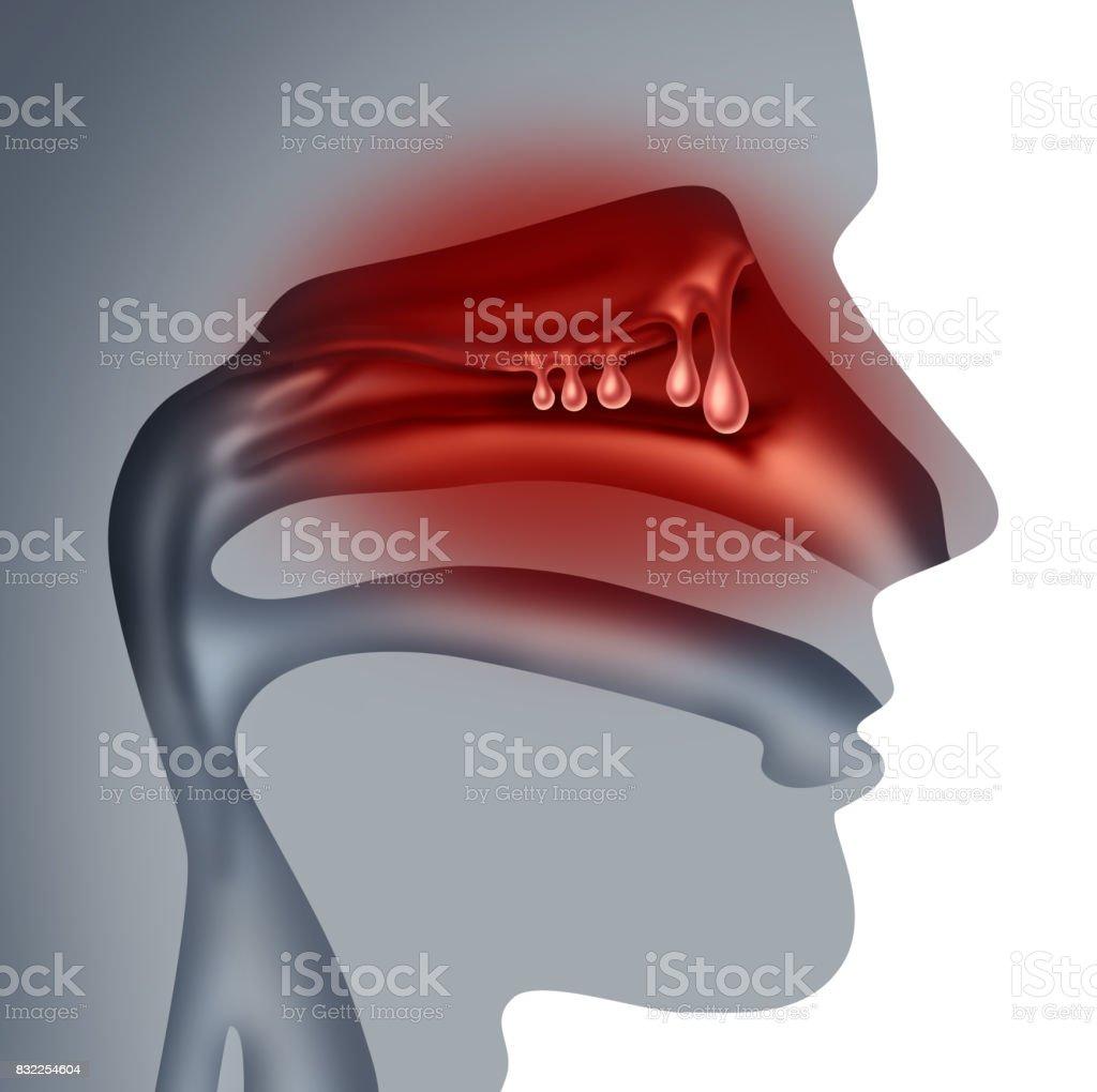 Nasal Polyps stock photo