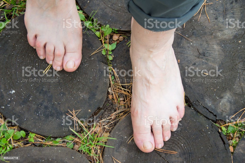 Natural physical therapy for flat feet. Female feet on the log rings as therapy against flatfoot stock photo