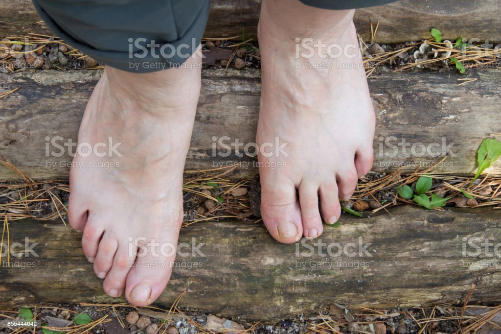 Natural physiotherapy for flat feet. Female feet on the logs as prevention against flatfoot stock photo