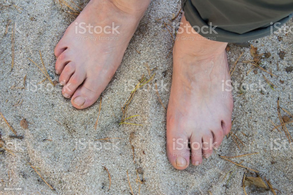 Natural physiotherapy for flat feet. Female feet on the sand as prevention against flatfoot stock photo