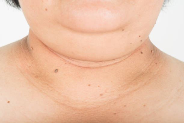 Neck and chin fat people stock photo