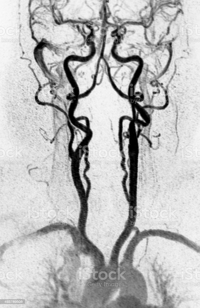Arteria MRA cuello - foto de stock