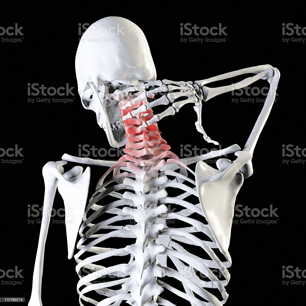 Neck pain Illustration royalty-free stock photo