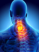istock Neck painful - cervica spine skeleton x-ray, 3D illustration. 579768670