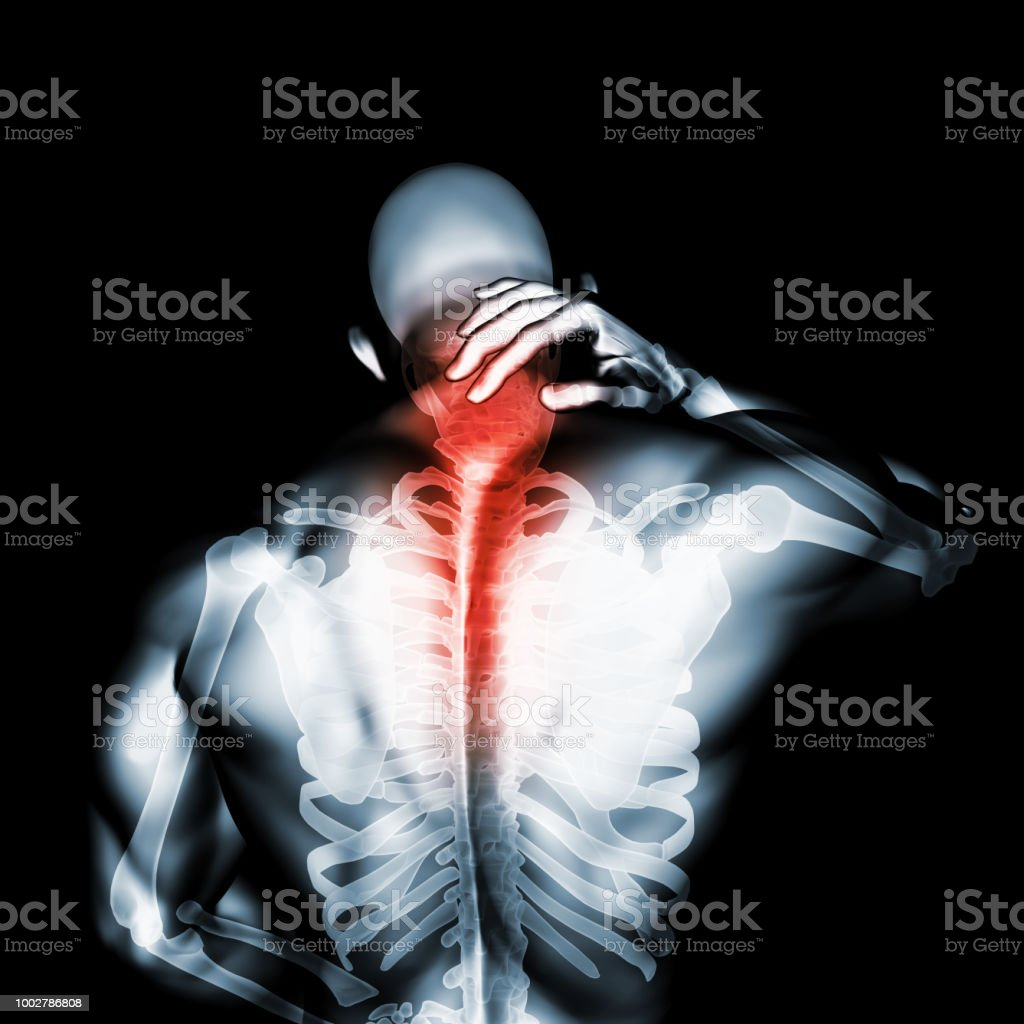 Neck painful - cervical spine skeleton x-ray, 3D illustration. stock photo