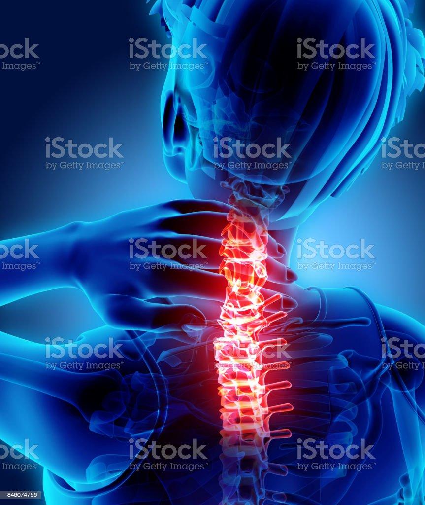 Neck painful - cervical spine skeleton x-ray, 3D illustration. stock photo