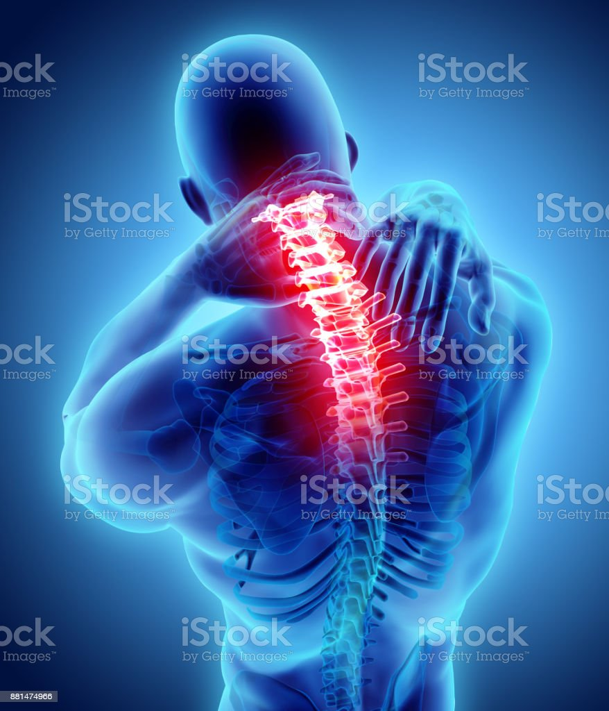 Neck Painful Cervical Spine Skeleton Xray 3d Illustration Stock ...