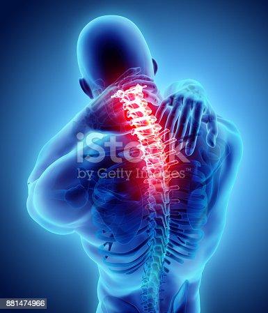 istock Neck painful - cervical spine skeleton x-ray, 3D illustration. 881474966