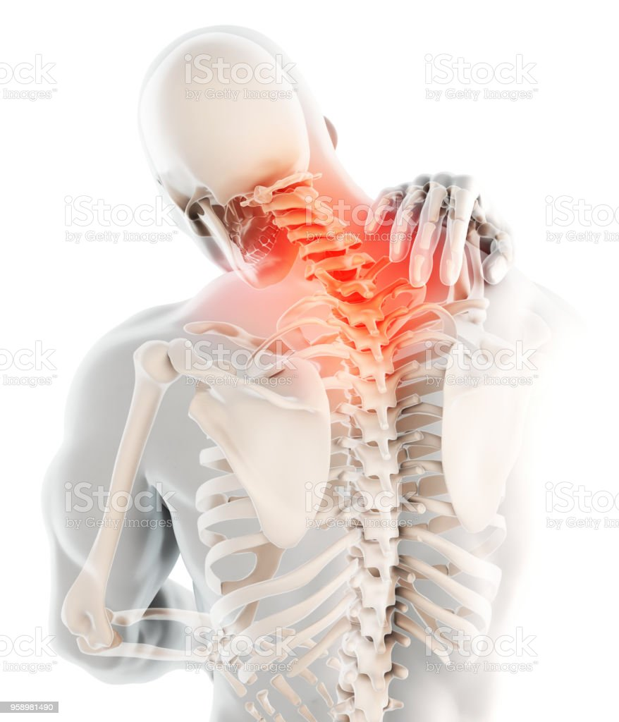 Neck Painful Cervical Spine Skeleton Xray 3d Illustration Stock