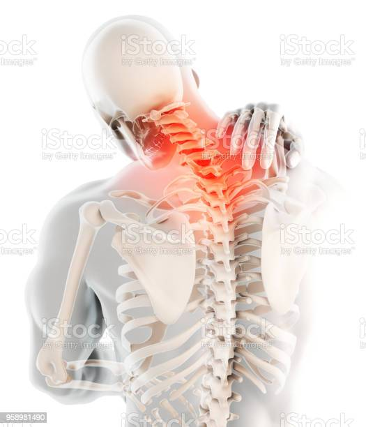 Neck painful cervical spine skeleton xray 3d illustration picture id958981490?b=1&k=6&m=958981490&s=612x612&h=agxvxcfbpgqgreu1fe7fwcx6v31db7 zc1cghsjnvh4=