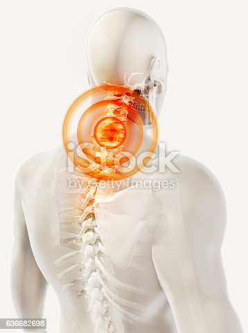 istock Neck painful skeleton x-ray, 3D illustration. 636682698