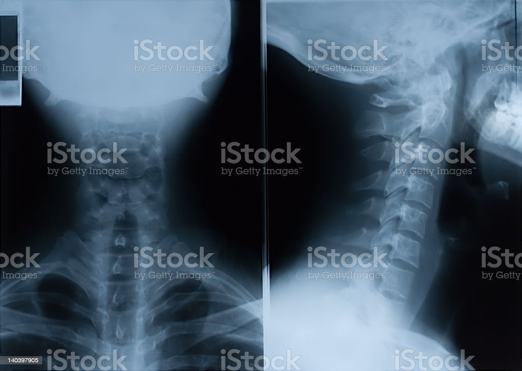 Neck X-Ray - front and side stock photo