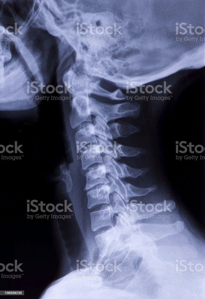 Side Neck X-Ray