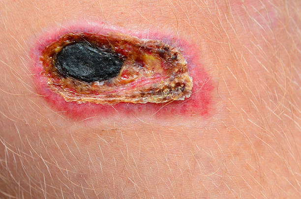 Necrotic scab on a human leg stock photo