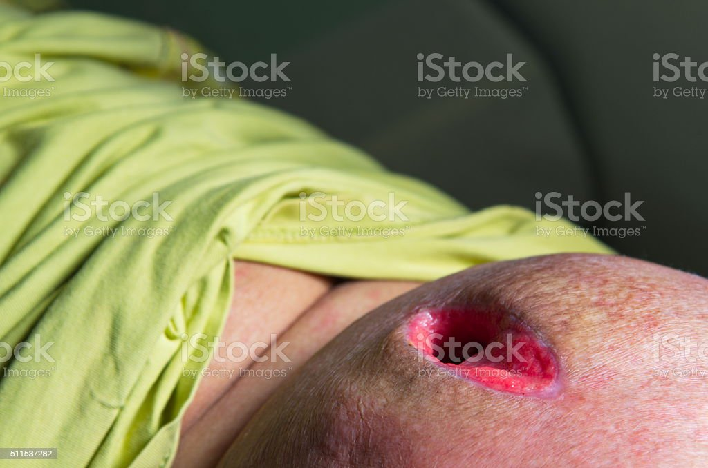 Needle abscess. stock photo