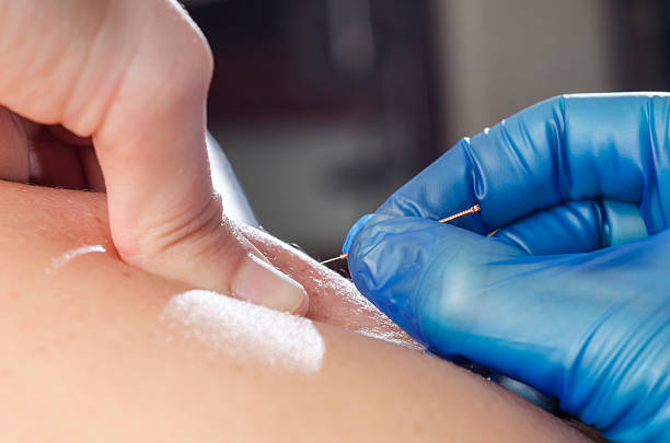 needle and hands of physiotherapist doing a dry needling. - dry stock pictures, royalty-free photos & images