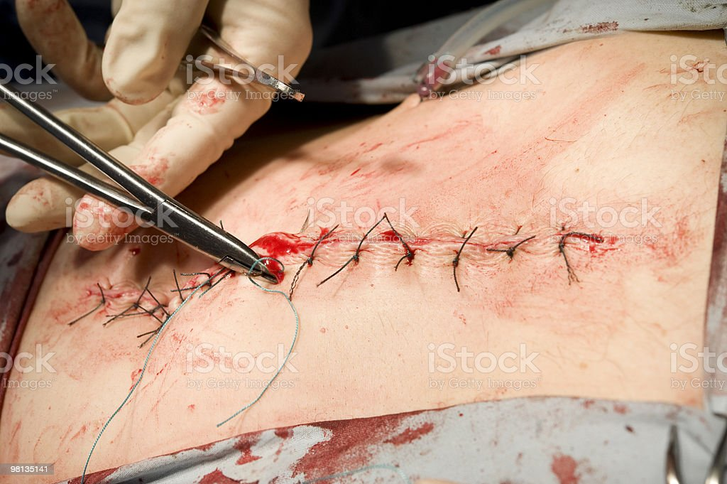 Needle holder in hands of surgeon royalty-free stock photo