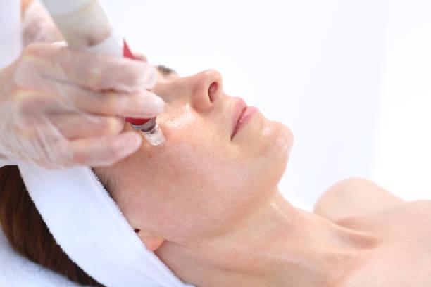 Nadel Mesotherapie Gesichtstraffung – Foto