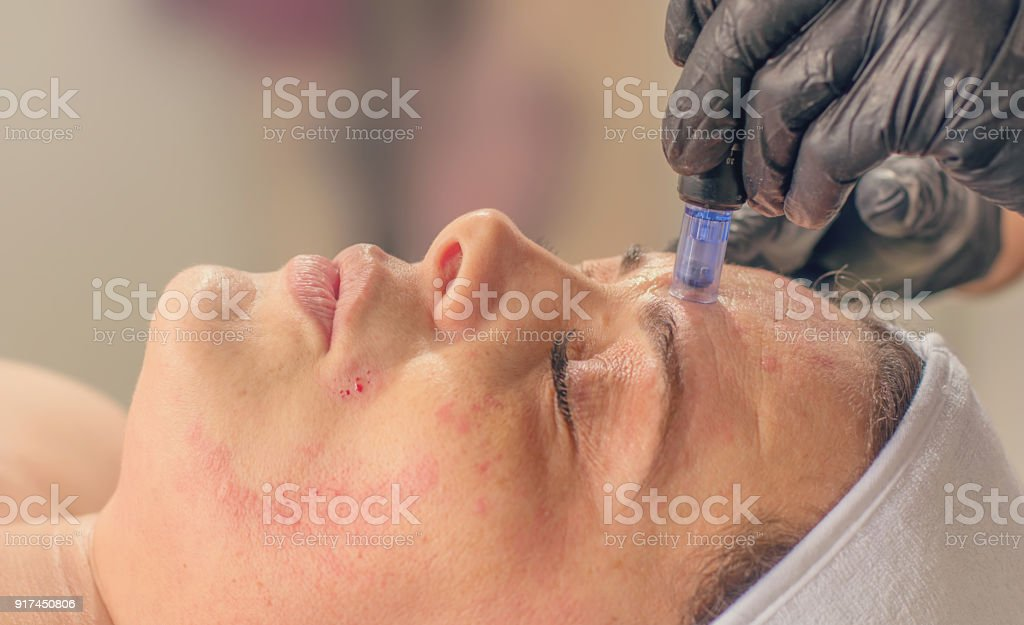 Needle mesotherapy treatment on a woman face. stock photo