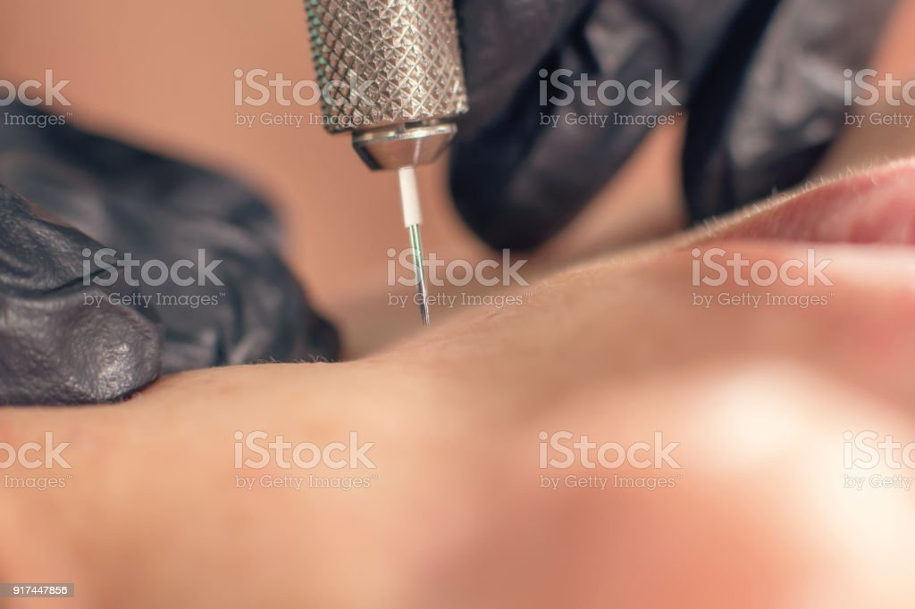 Needle wrinkle treatment. Needle Mesotherapy Single needle Clopse Up. stock photo