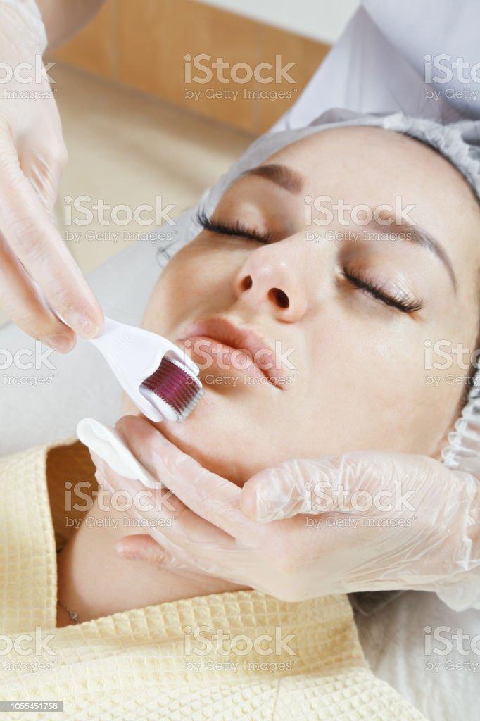 Needling chin stock photo