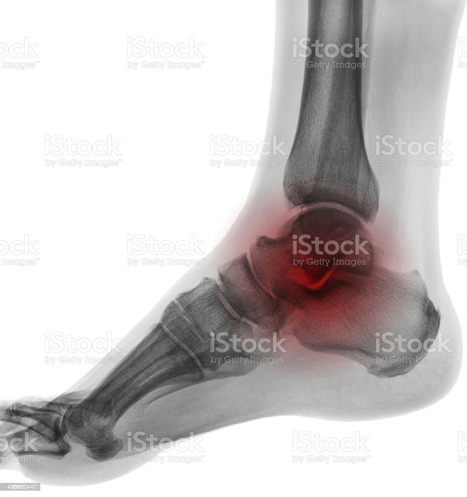 Negative X-ray  - Foot with red symbol of painful place stock photo